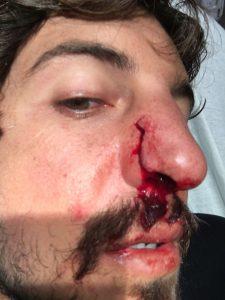 Gabriel Pastori se deu mal em Pipeline no final do ano passado.