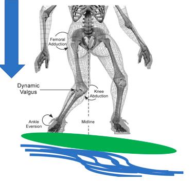 Aterrissagem do aéreo é um prato cheio para as lesões de tornozelo e joelho.