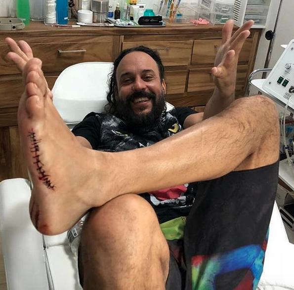 Em viagem recente ao México, Gabriel O Pensador precisou de 19 pontos no pé esquerdo.