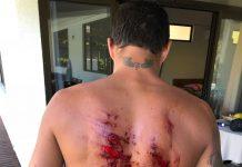 Filipe Toledo machuca as costas ao chocar-se contra a bancada de coral, durante os treinos para o Tahiti Pro Teahupoo.