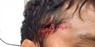 Cicatriz em Teahupoo