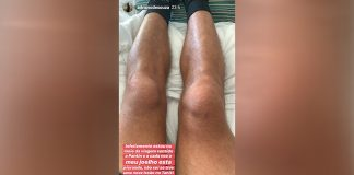 Nova lesão no joelho de Adriano de Souza